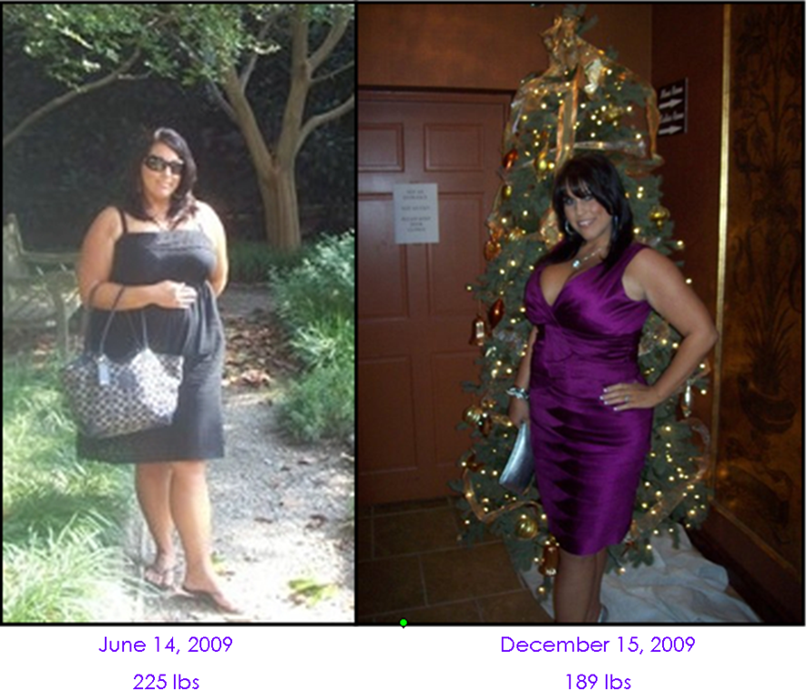 My Story Before And After Weight Loss 2009